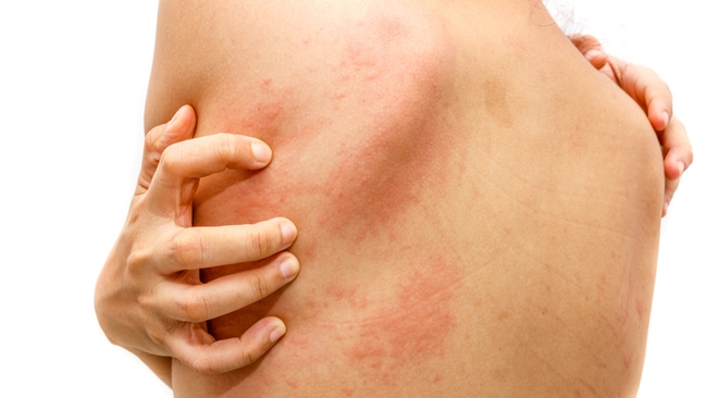 Mề đay mùa thu là bệnh dị ứng phổ biến: nguyên nhân là gì và phòng tránh như thế nào? - Ảnh 2.