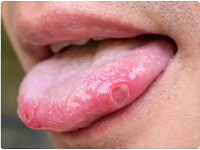 """Những triệu chứng nhiễm COVID-19 """"đặc biệt"""" chưa thể lý giải nguồn gốc xuất phát - Ảnh 5."""