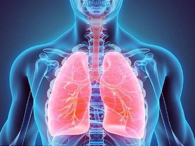 Tăng áp lực động mạch phổi và những điều bạn cần biết - Ảnh 1.