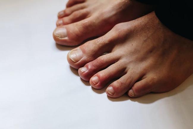 8 dạng phát ban trên da có thể là dấu hiệu COVID-19 - Ảnh 2.