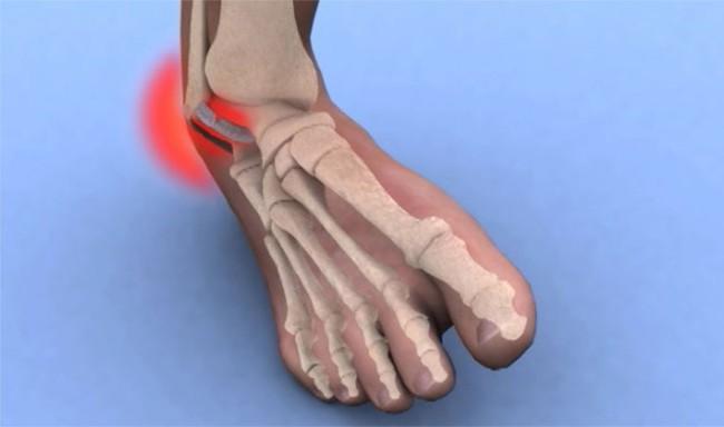Tổng hợp những điều cần biết về bong gân cổ chân - Ảnh 1.