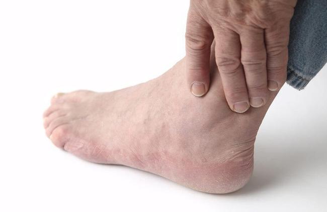 Tổng hợp những điều cần biết về bong gân cổ chân - Ảnh 2.