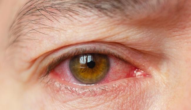 Khô mắt có phải triệu chứng của COVID-19 không? Nghiên cứu cho thấy điều gì? - Ảnh 2.