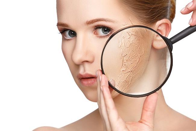 Tìm hiểu về da mặt: Hướng dẫn cách phân biệt các loại da - Ảnh 4.