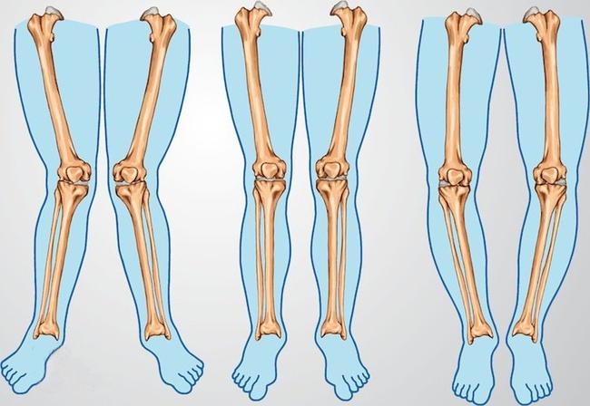Chân trẻ sơ sinh bị cong: Nguyên nhân và cách phòng tránh - Ảnh 2.
