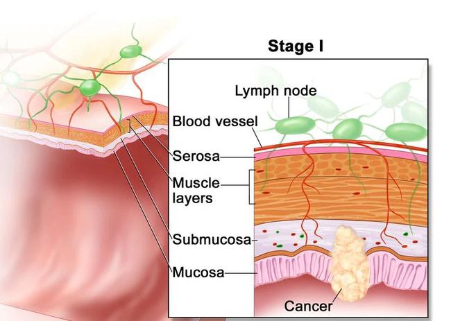 Các khối u ác tính hình ở niêm mạc của thành trực tràng và lan đến lớp dưới niêm mạc (Ảnh: Internet)