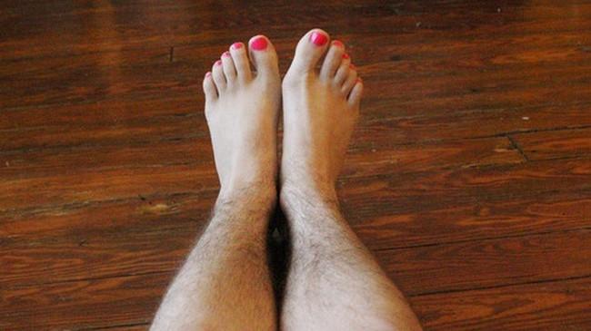 Tình trạng rậm lông ở phụ nữ: Nguyên nhân và biện pháp khắc phục - Ảnh 3.