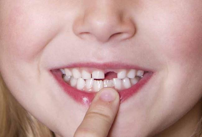 Những răng nào sẽ thay ở trẻ em? Răng sữa không thay có sao không? - Ảnh 3.