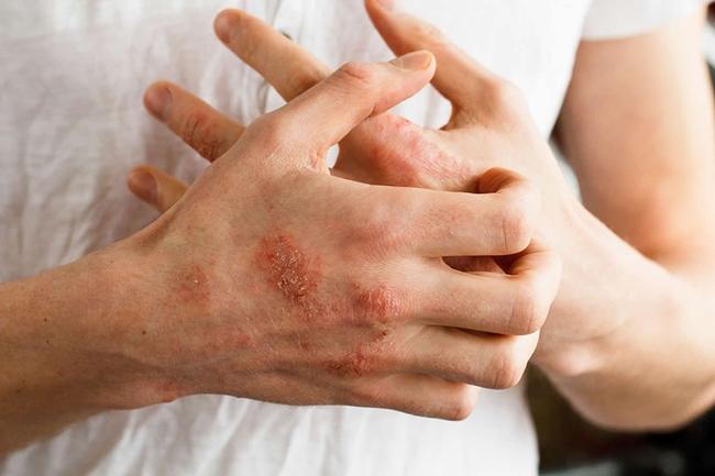 Dấu hiệu nào trên bàn tay cho thấy lượng đường huyết tăng cao vượt mức? - Ảnh 2.