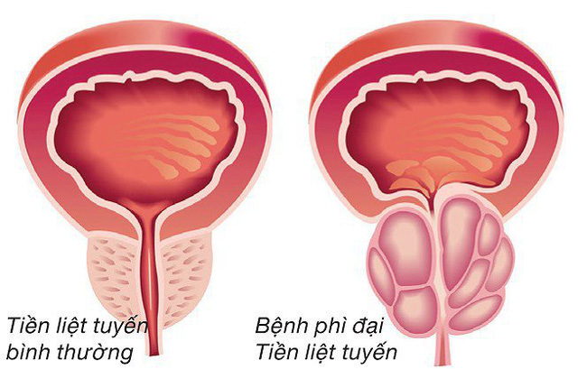Phì đại tuyến tiền liệt là bệnh gì? Từ A đến Z về bệnh phì đại tuyến tiền liệt - Ảnh 2.
