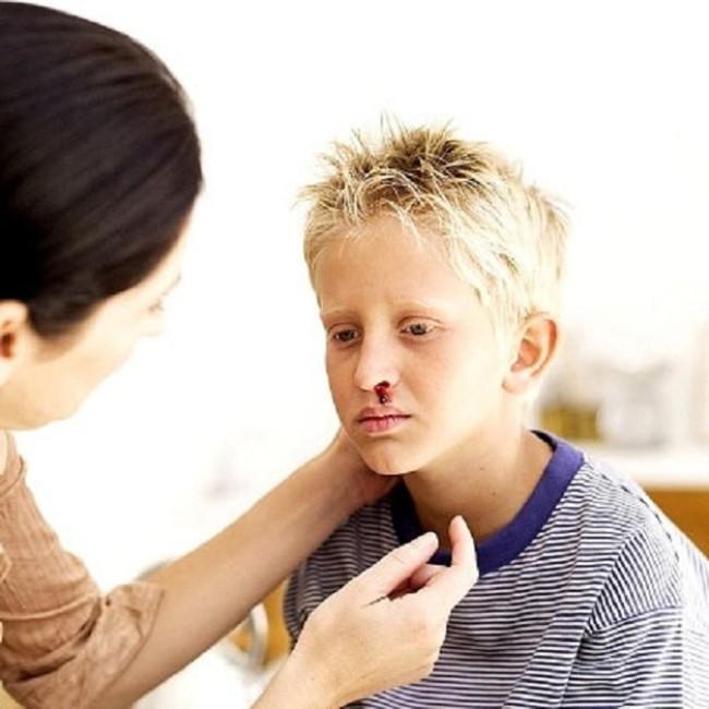 Máu khó đông ở trẻ em: Không điều trị kịp thời rất dễ tử vong - Ảnh 1.