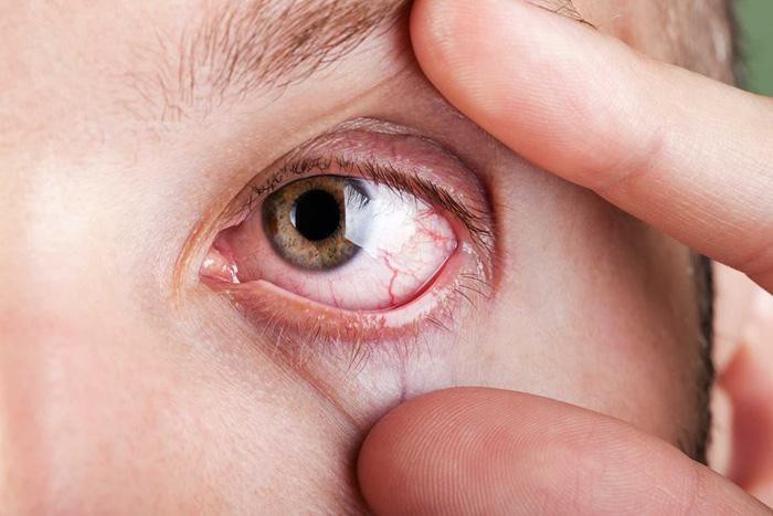hiểu lầm về bệnh đau mắt đỏ chữa trị