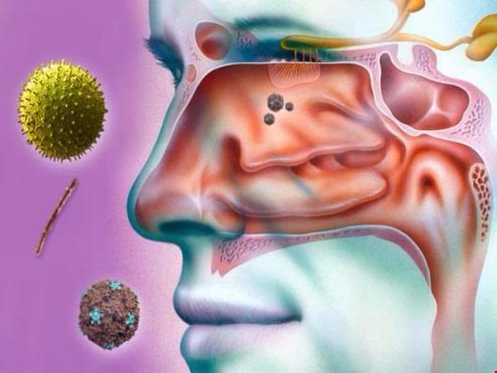 Viêm xoang nhiễm khuẩn và những điều cần biết - Ảnh 1.