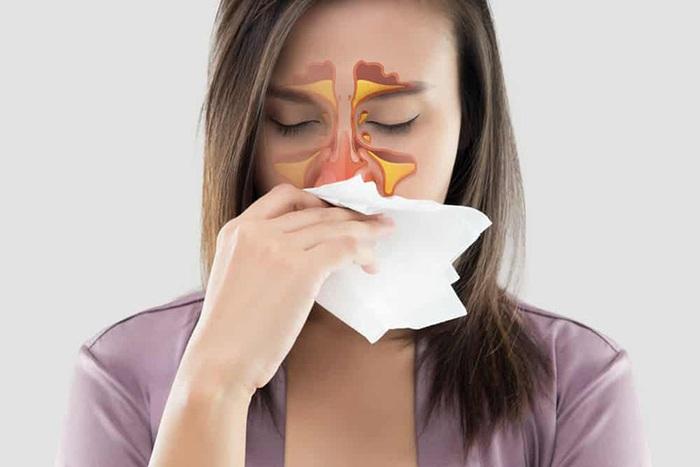 Viêm xoang nhiễm khuẩn và những điều cần biết - Ảnh 3.