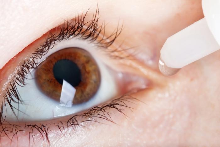 Thực hư thuốc nhỏ mắt chữa cận thị hiệu quả? - Ảnh 2.