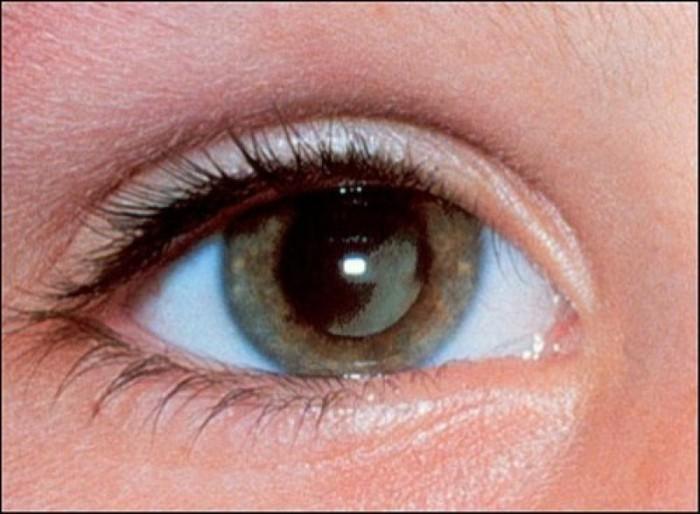 Đục thủy tinh thể ở người trẻ: căn bệnh đáng báo động - Ảnh 4.