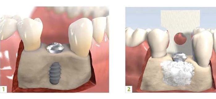 Răng vĩnh viễn bị lung lay: Nguyên nhân và biện pháp khắc phục - Ảnh 6.