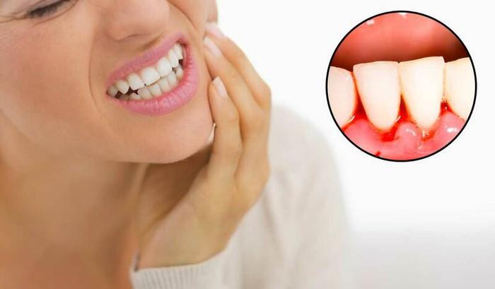Răng vĩnh viễn bị lung lay: Nguyên nhân và biện pháp khắc phục - Ảnh 2.