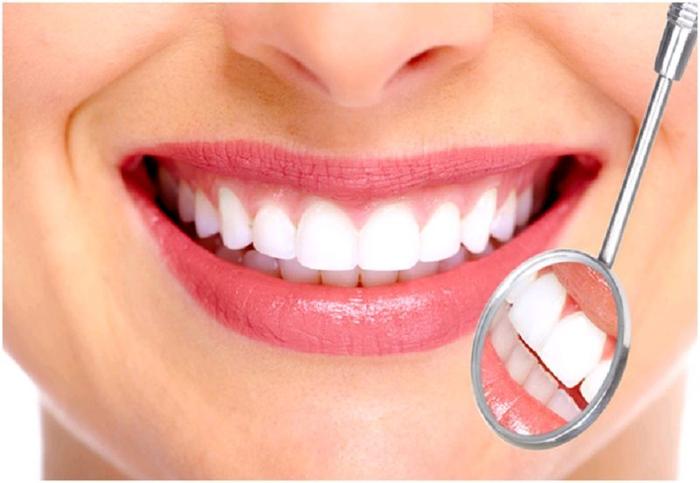 Răng bị mòn mặt nhai: Nguyên nhân, khắc phục và biện pháp phòng ngừa - Ảnh 4.