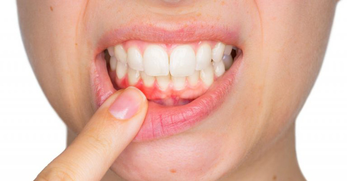 Răng vĩnh viễn bị lung lay: Nguyên nhân và biện pháp khắc phục - Ảnh 5.