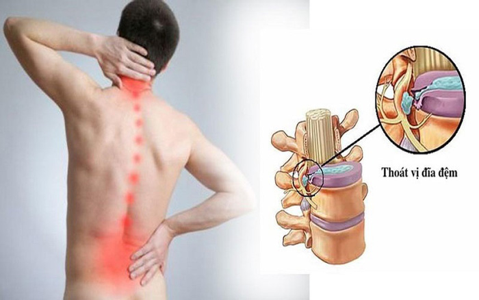 Thoát vị đĩa đệm cột sống thắt lưng: Nguyên nhân, dấu hiệu, các cấp độ và cách điều trị - Ảnh 1.