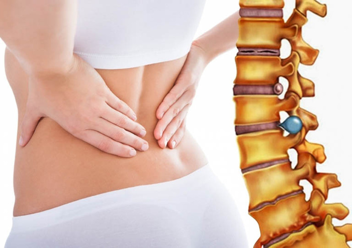 Thoát vị đĩa đệm cột sống thắt lưng: Nguyên nhân, dấu hiệu, các cấp độ và cách điều trị - Ảnh 3.