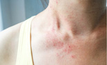 Những triệu chứng trên da của bệnh nhân Covid-19 có thể bạn chưa biết