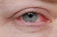 Các bước vệ sinh mắt khi bị đau mắt đỏ đúng cách để nhanh khỏi bệnh và phòng ngừa biến chứng