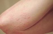 Sẩn ngứa mùa hè: Bệnh ngoài da thường gặp cần cảnh giác