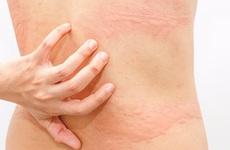 Tại sao mùa thu dễ mắc bệnh, đặc biệt các bệnh về da