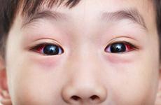 Đau mắt đỏ nên ăn gì? Những thực phẩm tốt cho những người bị đau mắt đỏ