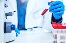 Nhóm xét nghiệm khảo sát chức năng bài tiết và khử độc của gan bao gồm những gì?