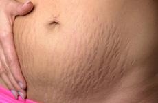Rạn da sau sinh là gì? Những điều cần biết về rạn da sau sinh