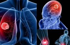 Tìm hiểu về ung thư di căn