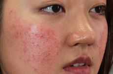 Cẩn trọng khi sử dụng mỹ phẩm có thể gây hại cho da