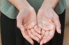 Chân tay ra mồ hôi khi trời lạnh có nguy hiểm không? Cần làm gì để kiểm soát tình trạng này?