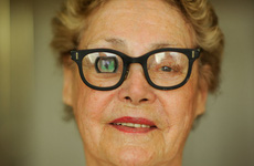 Điều trị biến chứng cận thị: Khả quan hơn khi phát hiện ở giai đoạn sớm!
