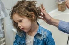 Trẻ em bị rụng tóc do bệnh lý, xử lý bằng cách nào?