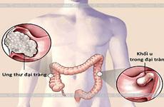 Ung thư đại tràng là gì? Tìm hiểu chung về bệnh ung thư đại tràng