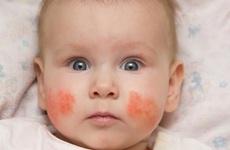 Chàm sữa ở trẻ sơ sinh: Tất tần tật những thông tin cần biết