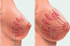 Ngực có cục cứng có nguy hiểm không? Nguyên nhân và cách xử lý khi ngực có cục cứng