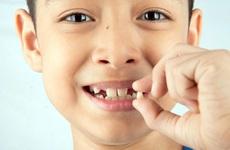 Những răng nào sẽ thay ở trẻ em? Răng sữa không thay có sao không?