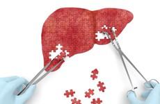 8 thói quen này có thể khiến ung thư gan phát triển nhanh chóng