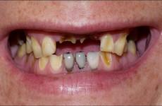 Lười đánh răng có thể làm tăng nguy cơ ung thư dạ dày