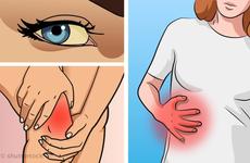 6 triệu chứng nghiêm trọng cảnh báo gan ngày càng 'xuống cấp'