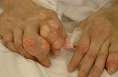 Một số lưu ý khi mắc bệnh gout