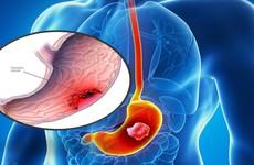 Ngăn ngừa ung thư dạ dày bằng cách cắt dạ dày - nên hay không nên?