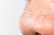 Cách trị mụn đầu đen trên mặt cực đơn giản