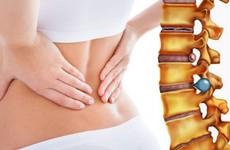 Các phương pháp phẫu thuật thoát vị đĩa đệm bạn cần biết