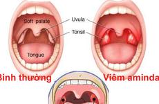Triệu chứng của viêm amidan mãn tính nhất định bạn phải biết